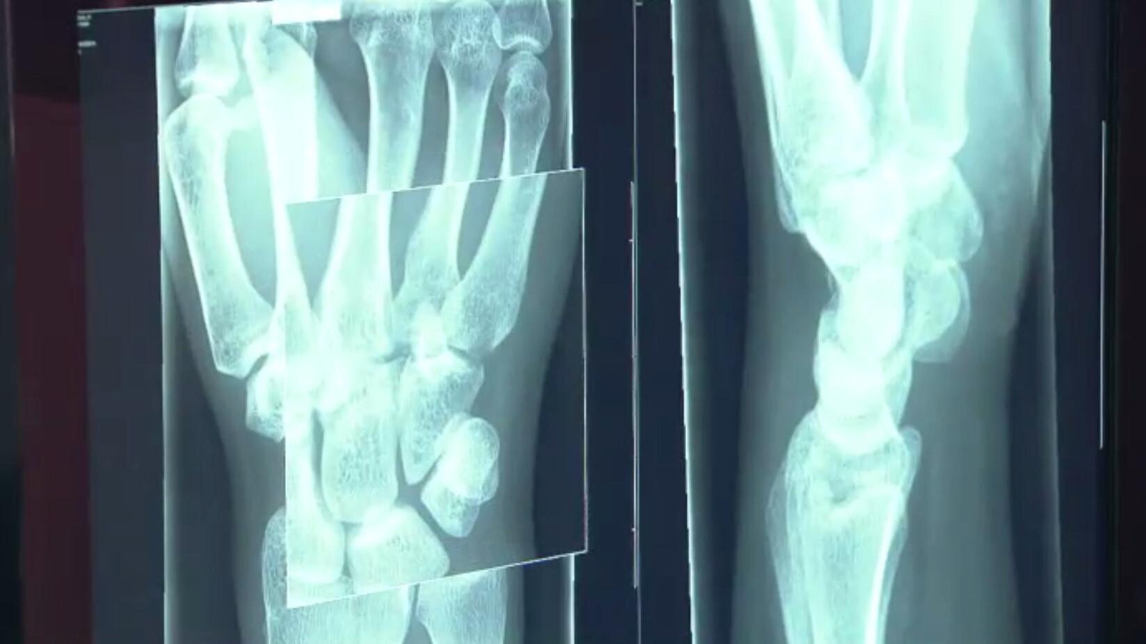 Schooltv: Hoe werkt een röntgenapparaat? - De binnenkant van je lichaam op  de foto
