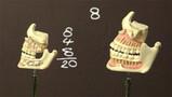 Tanden en kiezen wisselen