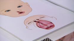 Wat is een schisis?: Een spleet tussen je lip, kaak of gehemelte