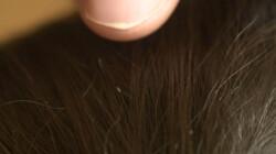 Wat is een hoofdluis?: Een beestje dat zich aan je haar vastklemt en bloed zuigt
