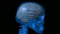 De hersenen: De hersenen zijn de controlekamer van het lichaam