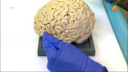 Het Klokhuis - Alzheimer