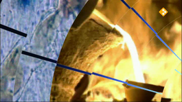 Labyrint Tv - Vaak Koppen Gevaarlijk Voor Het Brein - Labyrint Tv