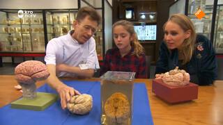 Wat gebeurt er in de hersenen van iemand met Alzheimer?