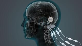 Op Zoek Naar Een Parkinsonmedicijn - Op Zoek Naar Een Parkinsonmedicijn