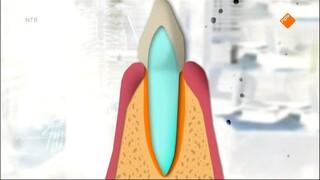 Het gebit