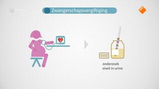 Hoge bloeddruk tijdens zwangerschap