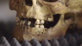 Gezichten reconstrueren met een schedel