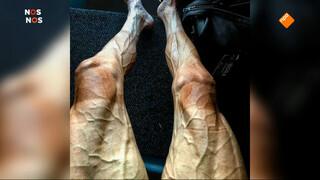 De benen van Poljánski