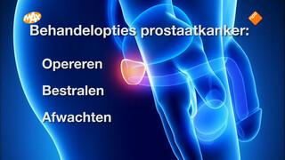 Veel onduidelijkheid over verschillen behandelopties prostaatkanker