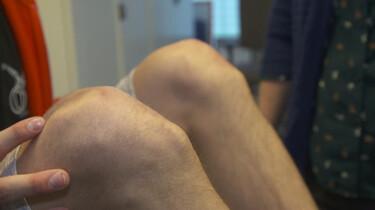 Wat is een knobbel onder je knie?: De ziekte van Osgood-Schlatter