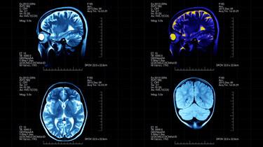 Wat is neuromarketing?: Reclame die je onderbewuste beïnvloedt