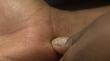 Helpt een kruisje in je muggenbult tegen de jeuk?: Tijdelijk minder jeuk door pijn