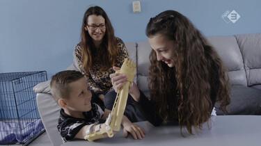 Een 3D-geprinte armprothese voor een kind