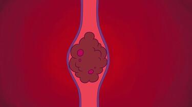 Clipphanger: Wat is trombose?