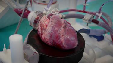 Kun je een hart repareren met geprint hartspierweefsel?: Een stukje hart uit de 3D-printer