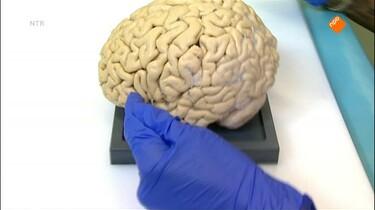 Het Klokhuis: Alzheimer