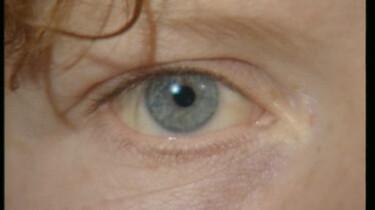 De ogen