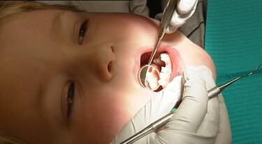 Een kies sealen bij de tandarts