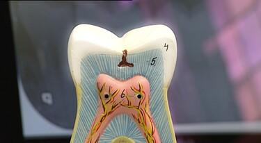 Een gaatje in je tand