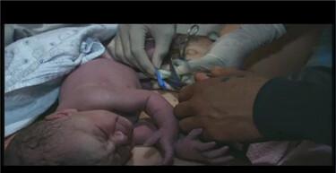 Bio-Bits vmbo: Voortplanting: De geboorte