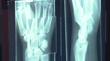 Hoe werkt een röntgenapparaat?