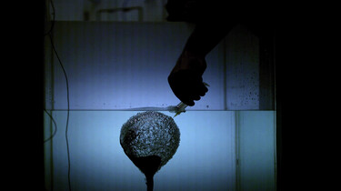 Luchtbelletjes met genezende krachten: Imploderende luchtbellen kunnen nierstenen vergruizen