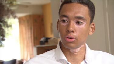 Wat is Vitiligo?